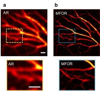 REAS_Caltech_Simpler_and_Faster_Microscopy_Enables_Broad_Biomedical_Applications_WEB